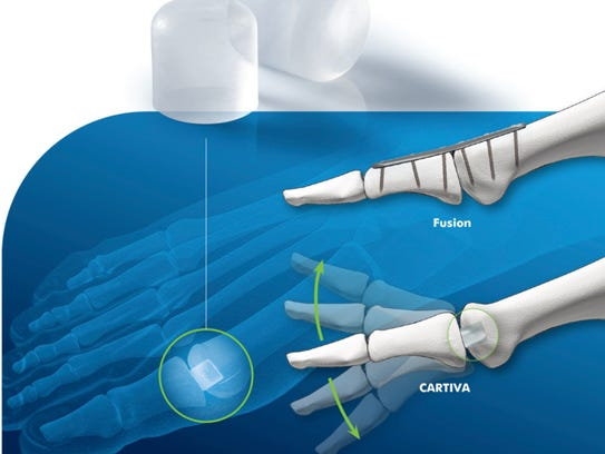 The Cartiva Synthetic Cartilage Implant was approved