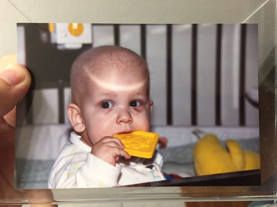 This is Corey Foister after he was diagnosed with cancer.