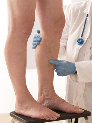 Blood clots can be deadly, so knowing which medication to take is of the utmost importance.