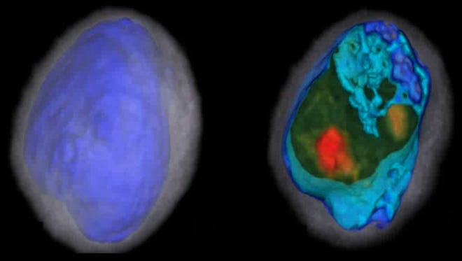 Physicians and scientists can take up to 600 measurements of each cell and crop, color and analyze cells similar to what radiologists can do with a CT scan.