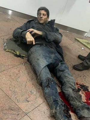 Sebastien Bellin lies wounded at the Brussels Airport in Belgium after explosions Tuesday, March 22, 2016.