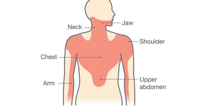 Chest pain associated with heart attack.