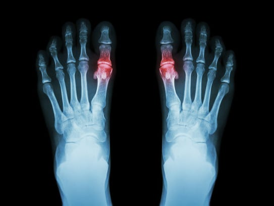 A form of arthritis that often surfaces suddenly with