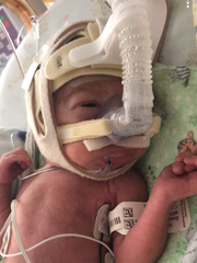 Royce Gonzales was born April 20 born 11 weeks early.