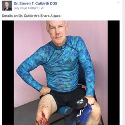 A Texas dentist was attacked by a bull shark while spearfishing in the Bahamas over the weekend.  Steven T. Cutbirth's shared gruesome images of the attack on his Facebook page and said he felt lucky to be alive.
