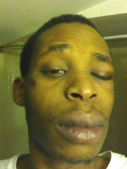 A photo of Pavion Phillips after an altercation with