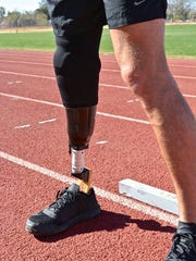 A RUSH Foot prosthetic device. Scott Moore, of Urbandale,