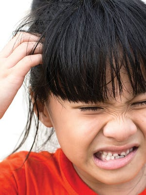 Intense itching of head lice  can result in sores that become infected from bacteria already present on the scalp.