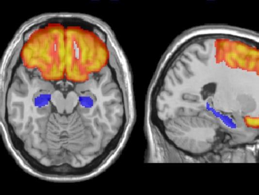 636029788385996802-adolescent-brain.jpg