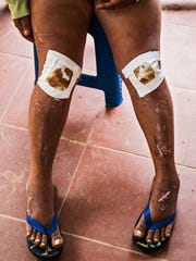 Yolanda Ospina's legs were badly injured as she was dragged down stream in the floods and landslide that swept through Mocoa, Colombia destroying her home and those belonging to hundreds of others.April 9, 2017