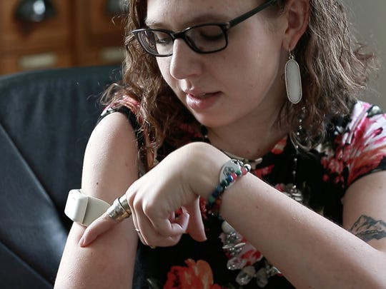 Leah Schneider talks about the StimRouter device she wears on her upper right arm  Friday, June 22, 2018, at her house in Wausau, Wis. T'xer Zhon Kha/USA TODAY NETWORK-Wisconsin