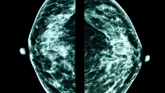 It's rare that a woman will get called back for a repeat mammogram because the image quality was poor. Most of the time, she's called back because there's a suspicious area, and the next set of images are coded and billed as diagnostic.