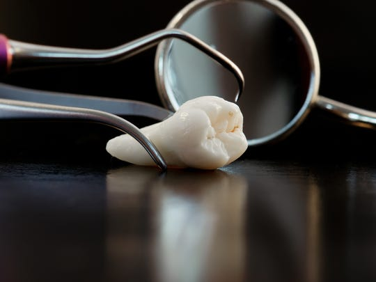Wisdom teeth and tools for treatment.