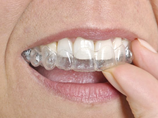 A clear aligner