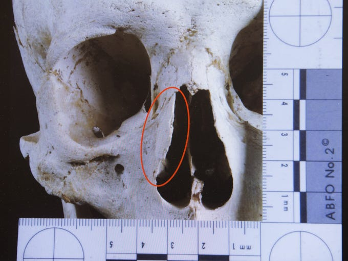 A computer image of the skull of border crosser with