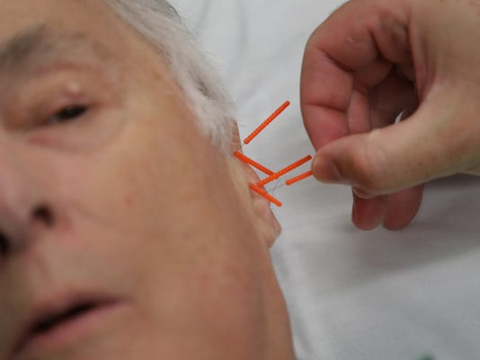636651917447817814-061918-acupuncture-005.jpg