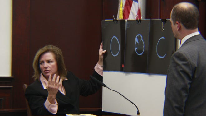 Dr. Kathryn Wells, an expert witness in child abuse pediatrics, refers to CT scans taken of 3-year-old Kaelyn Bray's head that were taken before she died of severe injuries to her brain. Wells testified that she did not believe Bray's injuries were accidental.