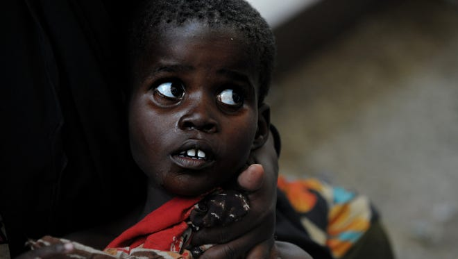 A Somali child looks up at doctors surrounding him after he was admitted into a local hospital suffering from severe diarrhea in this 2011 photo from a country ravaged by famine, war and drought.