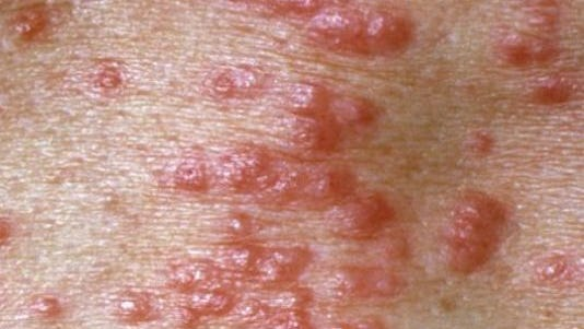 Scabies is caused by a tiny, microscopic mite.