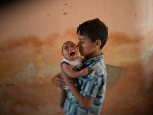 AP BRAZIL ZIKA BIRTH DEFECTS I FILE BRA