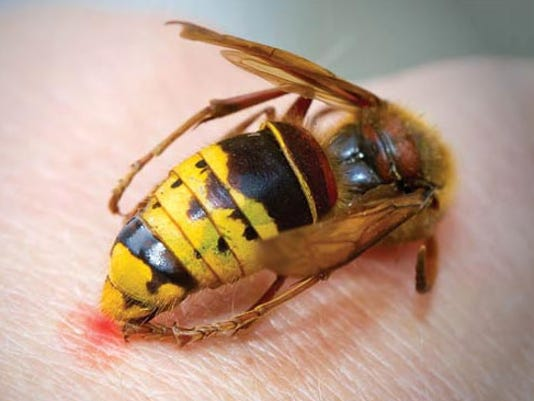 636670280785426674-courier-pst-2018-NEW-LOOK-bee-sting.jpg