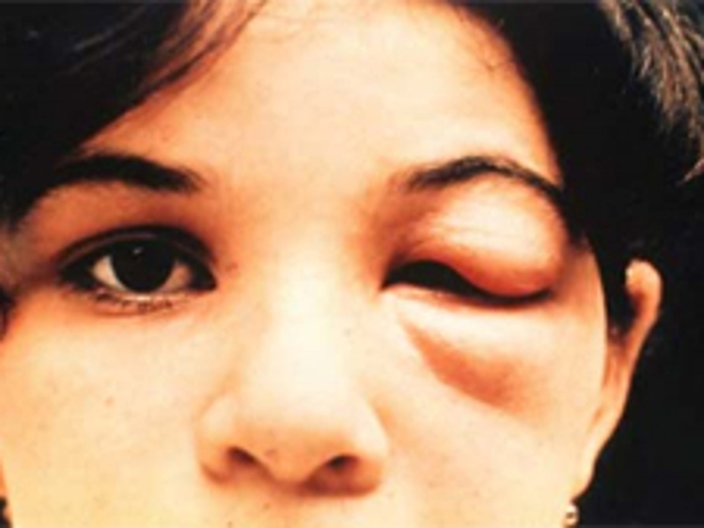 Swelling of an eyelid is a common symptom of the kissing