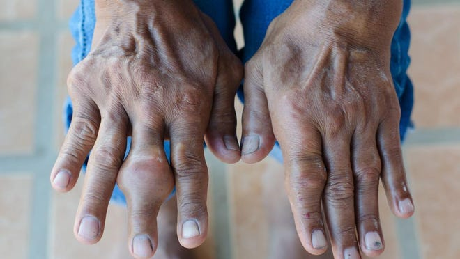 Gout is the most common form of inflammatory arthritis, even more common than rheumatoid arthritis.