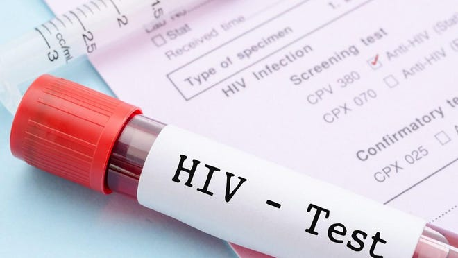 The Ottawa County Department of Public Health will provide no-cost HIV testing on Thursday, June 25, at it's James Street location.