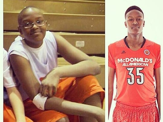 Before and After: Myles Turner shed the baby fat to