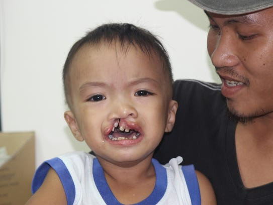 Cleft lip and palate can cause debilitating facial