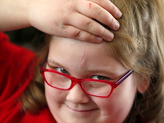 Destiny Carroll, 8, of Surprise, flashes her scar that