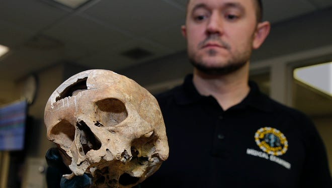 Michael Simley, forensic investigator for the Milwaukee County Medical Examiner's Office, inspects a human skull found In January of last year  in Wauwatosa.  In March it was sent to be analyzed at a lab at the University of North Texas. It's now back in storage in Milwaukee.