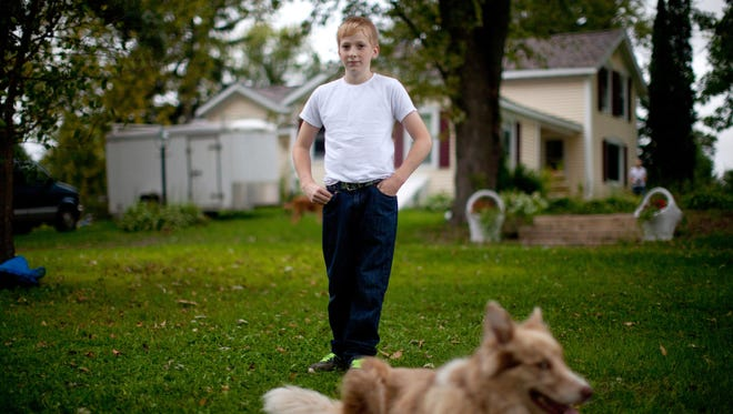 """Jacob Reeves, pictured at home in Stoughton, Wis. In 2014 Jacob was diagnosed with juvenile dermatomyositis — a rare disease that his mother Dawn attributes to the high level of atrazine found in their well water. """"I only cried once,"""" Dawn Reeves said, """"when they said he might not walk again."""""""