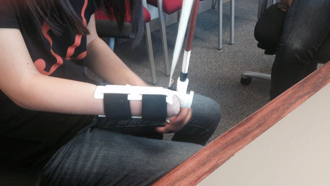 Sarah Valentiner's new prosthetic designed by NIU student Oleseun Taiwo and created with a 3D printer, is much lighter, fits better and is made in such a way she does not have to dismantle the violin bow on September 26, 2016.