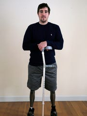 In this Friday, March 14, 2014 photo, Jeff Bauman stands in his home in Carlisle, Mass. Bauman, who lost both of his legs in the Boston Marathon bombings, helped identify one of the two brothers accused of setting off the explosions, which killed three and injured more that 260 others.