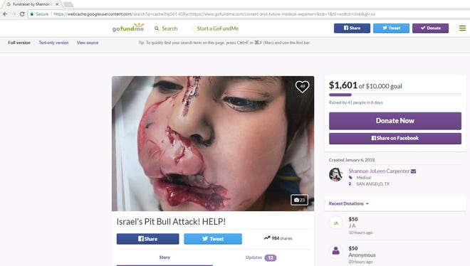 A Jan. 17, 2017, screenshot of a currently deactivated GoFundMe account for Israel Costilla, who was mauled by a pit bull last month.