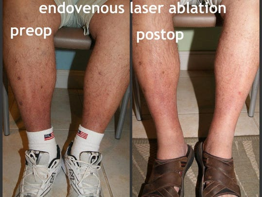 how to heal an open wound on bottom of foot
