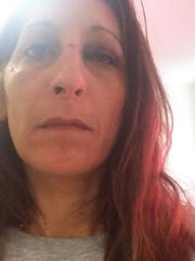 Noemi Villarreal's face was bruised after she said her boyfriend Lance Taylor hit her, according to a police report.