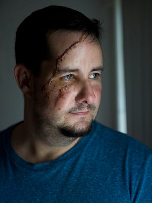 While letting his dogs outside in a routine all too familiar Andrew Meunier was attacked by a black bear in his own backyard Tuesday night in Naples. Bear sightings are not uncommon in Meuniers' neighborhood Amberton Townhomes, a gated community just north of Gulf Coast High School. Seen here in his home Friday, Jan. 12, 2018.