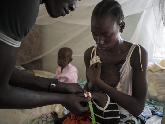 South Sudan Africa Hunger Crisis (2)