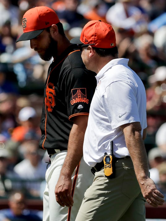 2018-03-23-madison-bumgarner-injury
