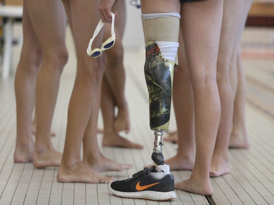 Kyle Dedert stands on his prosthetic leg before practice