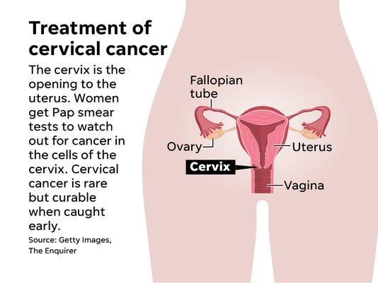 CervixOnlineDiagram.jpg