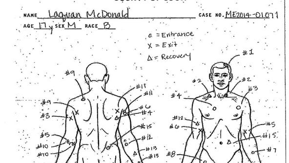 This autopsy diagram shows the location of wounds on