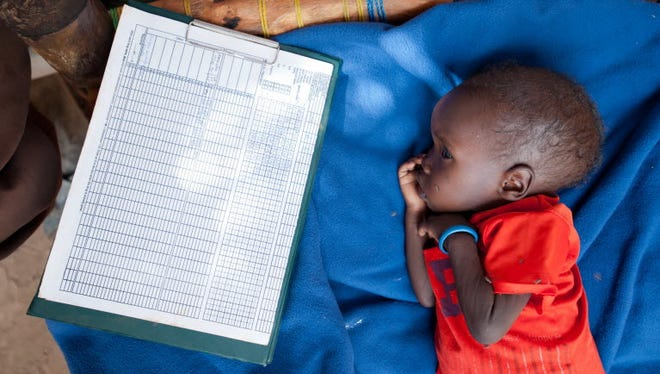 A malnourished child is treated in a nutrition center in South Sudan on May 31, 2012.