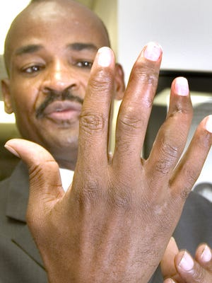 Don Logan was the victim of a mail bomb in 2004. His bent  fingers show the scars of where he had to have surgery to repair the damage to his hand.