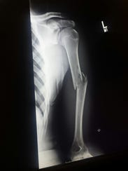 X-Ray of the broken arm Mason Evans suffered at the