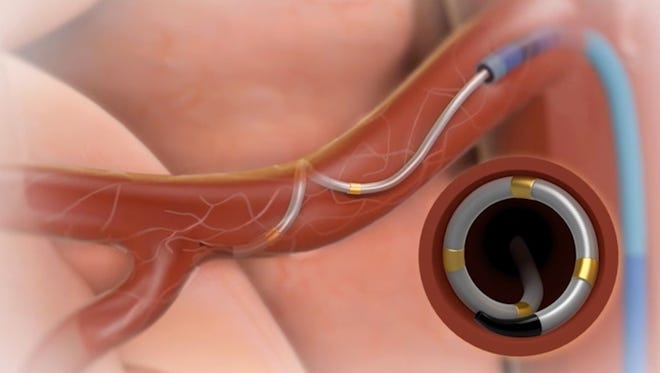 Hypertension Center and Heart & Vascular have partnered to offer two new global clinical trials investigating renal denervation with the investigational Symplicity Spyral catheter and Symplicity G3 radiofrequency generator.