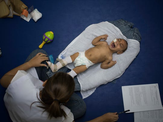 In this Sept. 30, 2016 photo, 1-year-old Jose Wesley Campos, who was born with microcephaly, cries during his physical therapy session at the AACD rehabilitation center in Recife, Brazil. Jose is like a newborn. He is slow to follow objects with his crossed eyes. His head is unsteady when he tries to hold it up, and he weighs less than 13 pounds, far below the 22 pounds that is average for a baby his age.