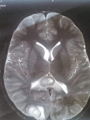 A scan of Sam Bennett's brain showed a tumor in the